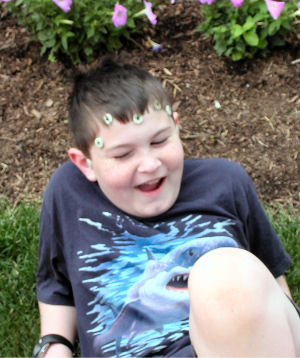Matthew, wearing fiducials, enjoys a humorous moment one day before his second brain surgery